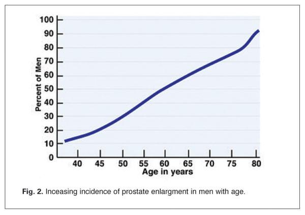 lagodny przerost prostaty statystyki