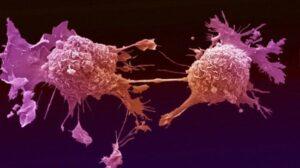 Chemioterapia rozprzestrzenia raka na cały organizm - kolejne wyniki badań