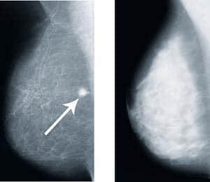 mammografia jest niebezpieczna