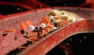 poziom cholesterolu a zdrowie