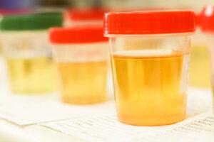 Kolor moczu i zapach a stan zdrowia. Test z kropli oleju sezamowego