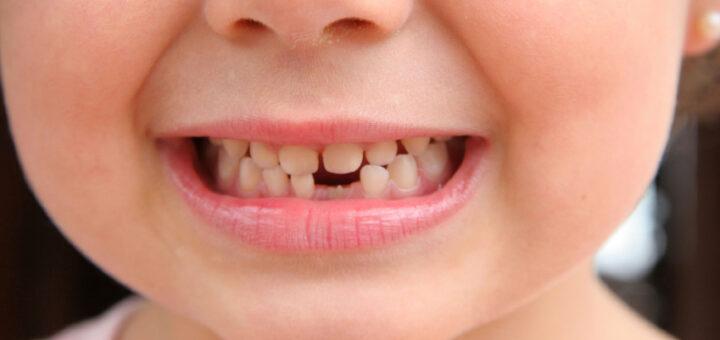 co mówią zęby