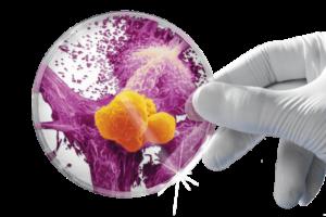 Gc-MAF makrofagi