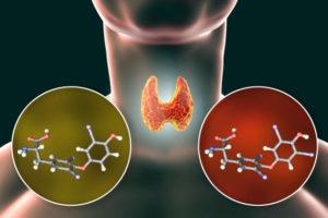 hormony tarczycy T3 T4 niedoczynność